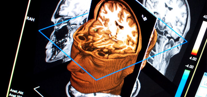 Brain-fMRI-by-Ars-Electronica-Creative-Commons